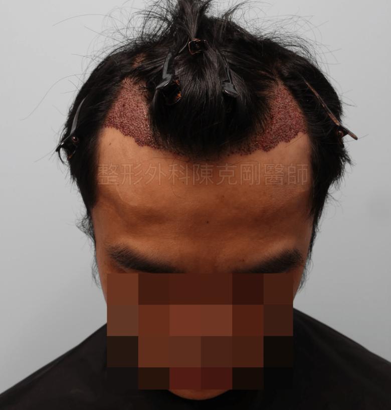 M型禿植髮油頭低頭術後立即