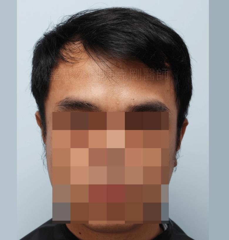 M型禿油頭植髮術前
