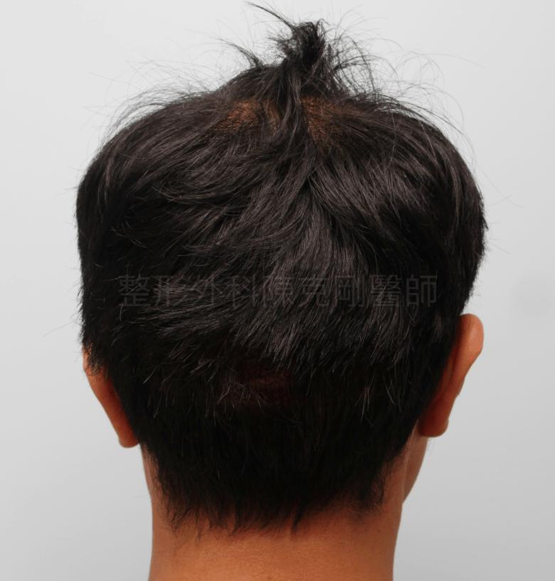 M型禿分層剃髮