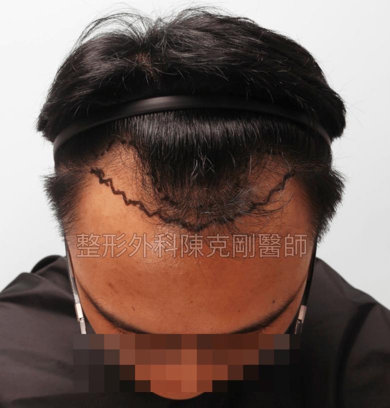 M型禿植髮低頭畫線