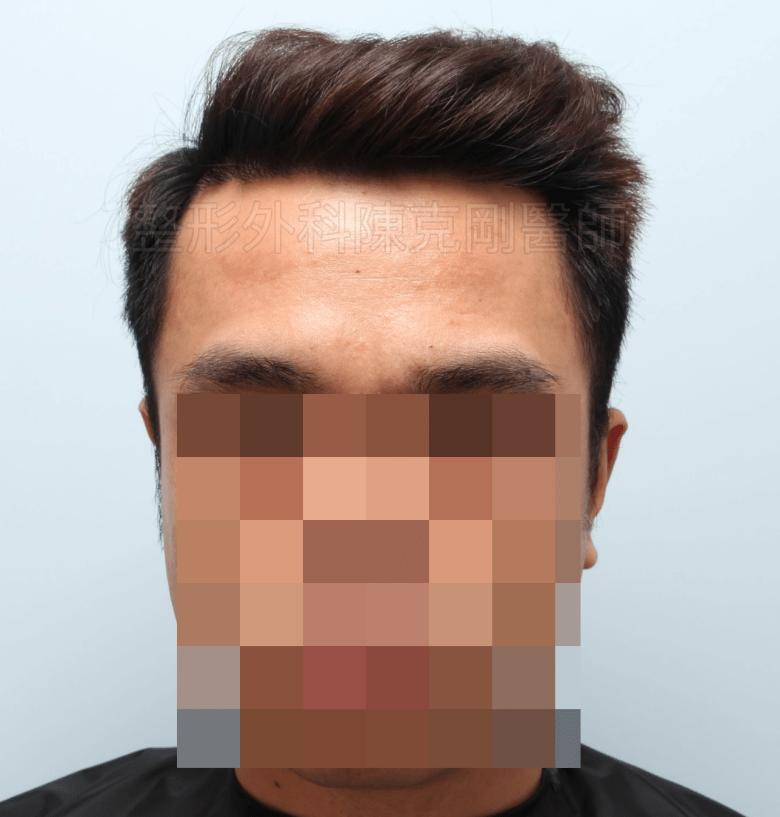 M型禿植髮油頭術後一年