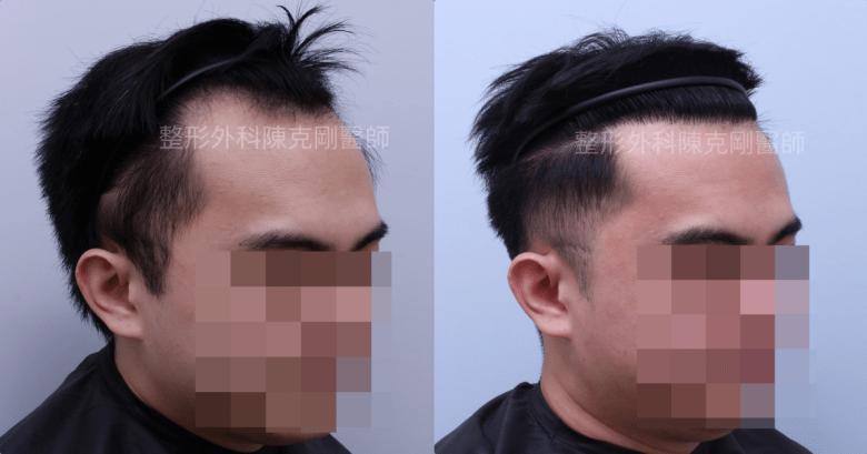 高密度髮線植髮右側術後六個月比較