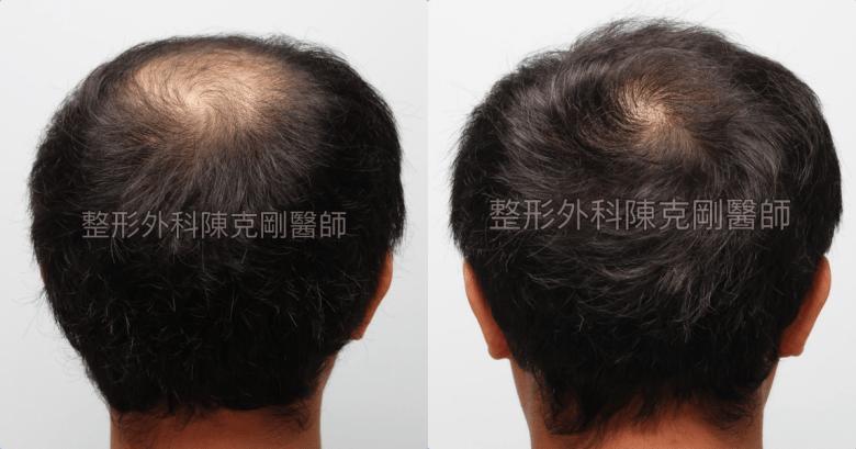 FUE巨量植髮後腦比較