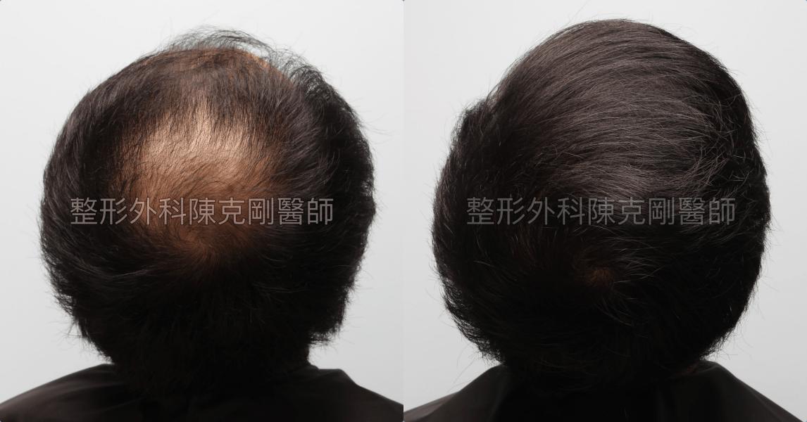 FUE巨量植髮髮旋術後一年比較