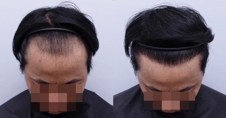 分層剃髮免剃植髮低頭比較