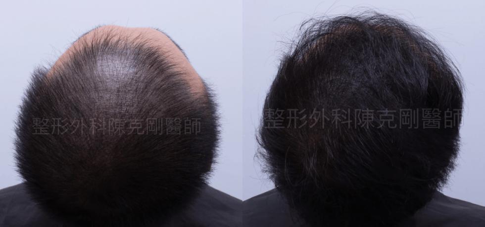 頭皮紋繡巨量植髮抬頭對比