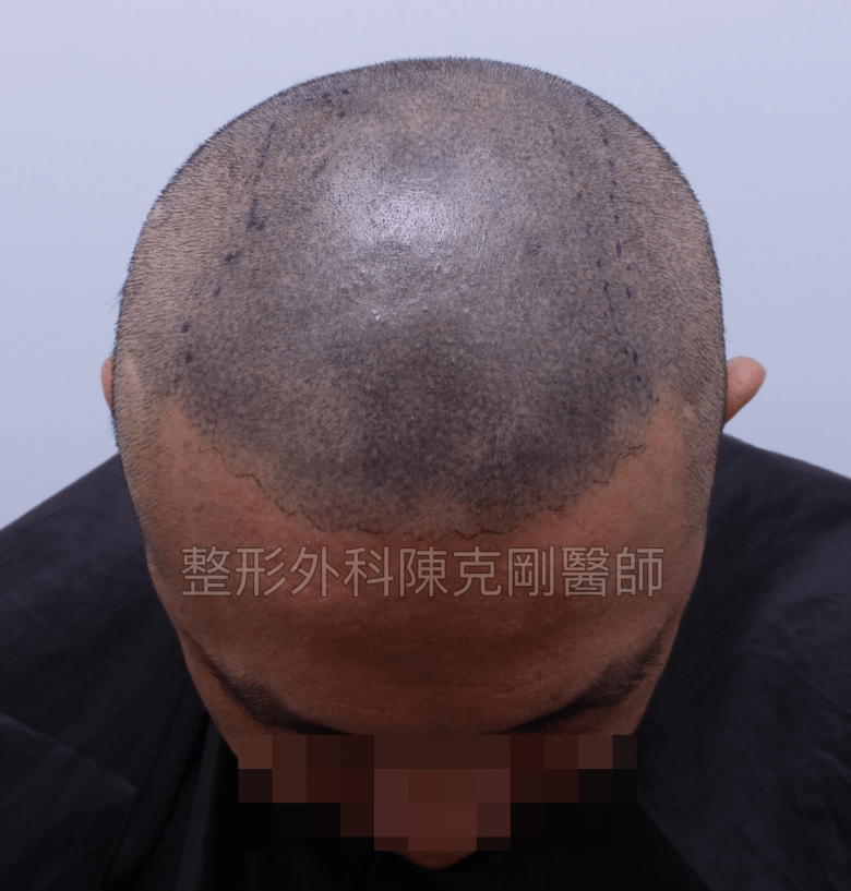 頭皮紋繡巨量植髮術前剃光低頭