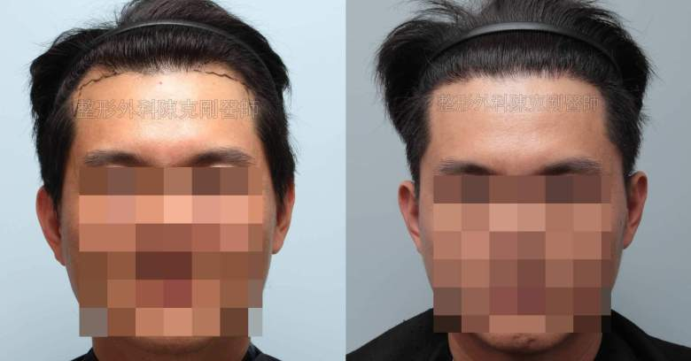 FUE男性髮線植髮正面比較