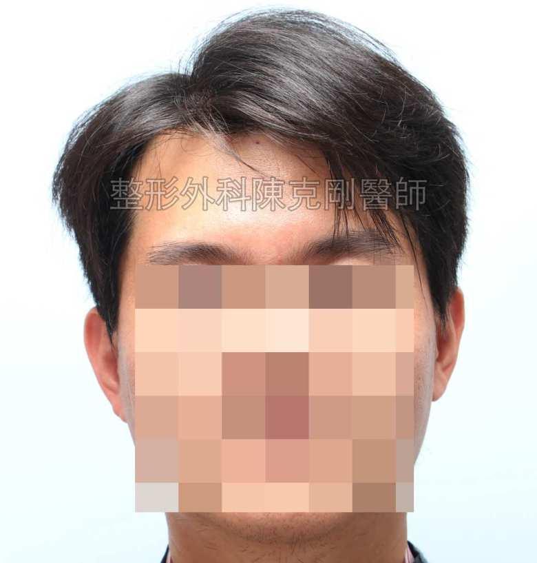 FUE髮線植髮正面術前頭髮放下