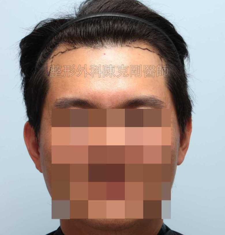 FUE髮線植髮術前正面畫線