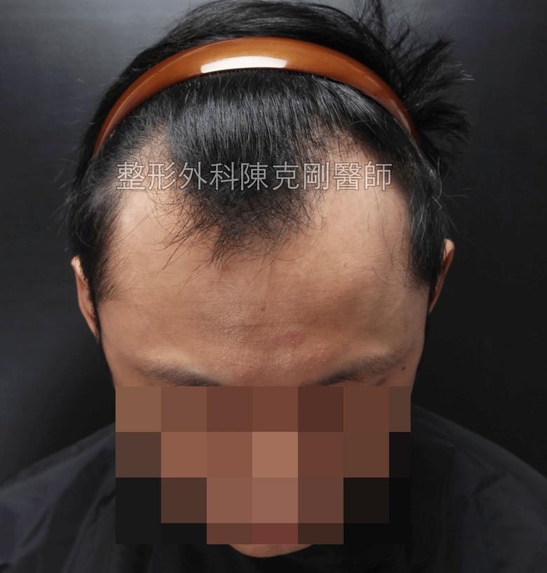 植髮手術後生長過程