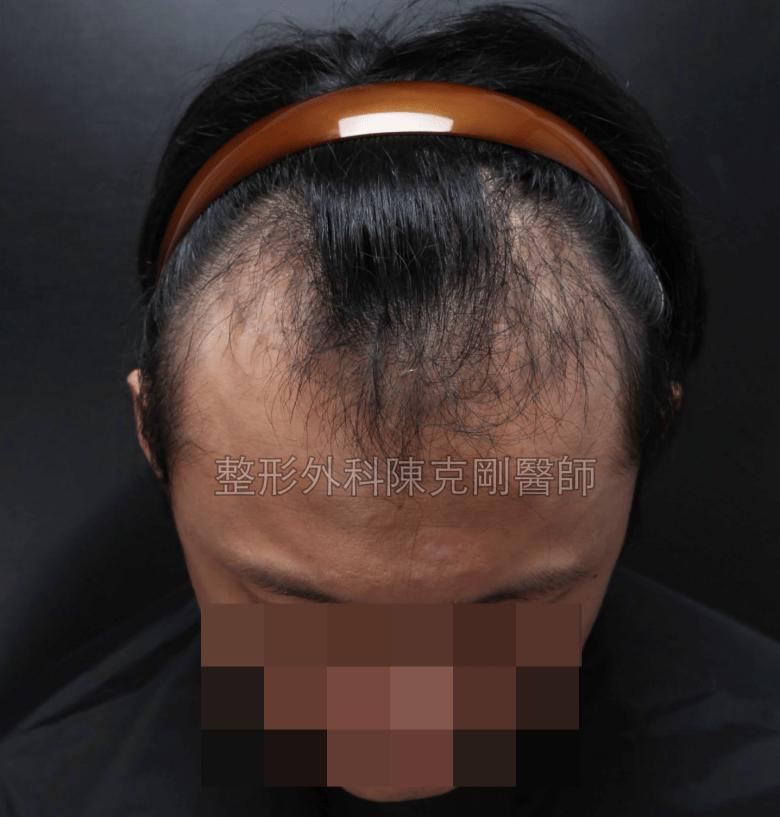 植髮三個月髮量