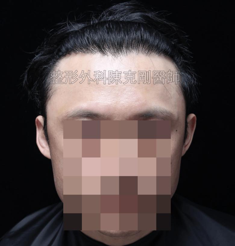 植髮術後一年半