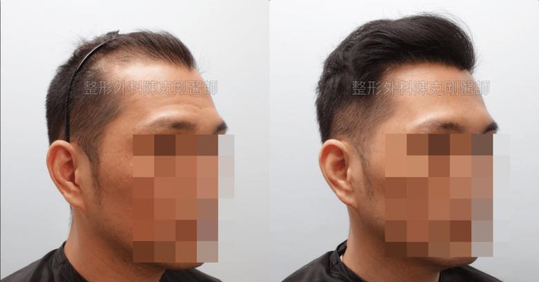巨量植髮油頭右側比較