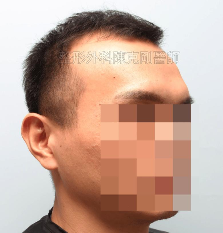 植髮治療髮線後退改善髮量 術前右邊