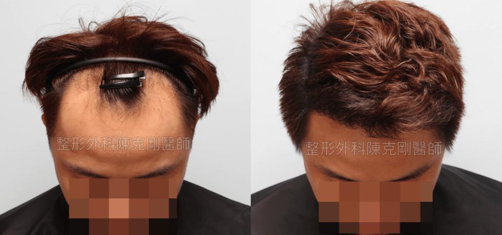 中國大陸植髮失敗重修低頭術後半年比較