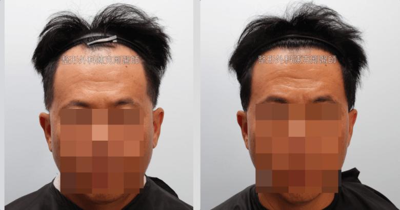 髮線後退植髮正面術後半年比較