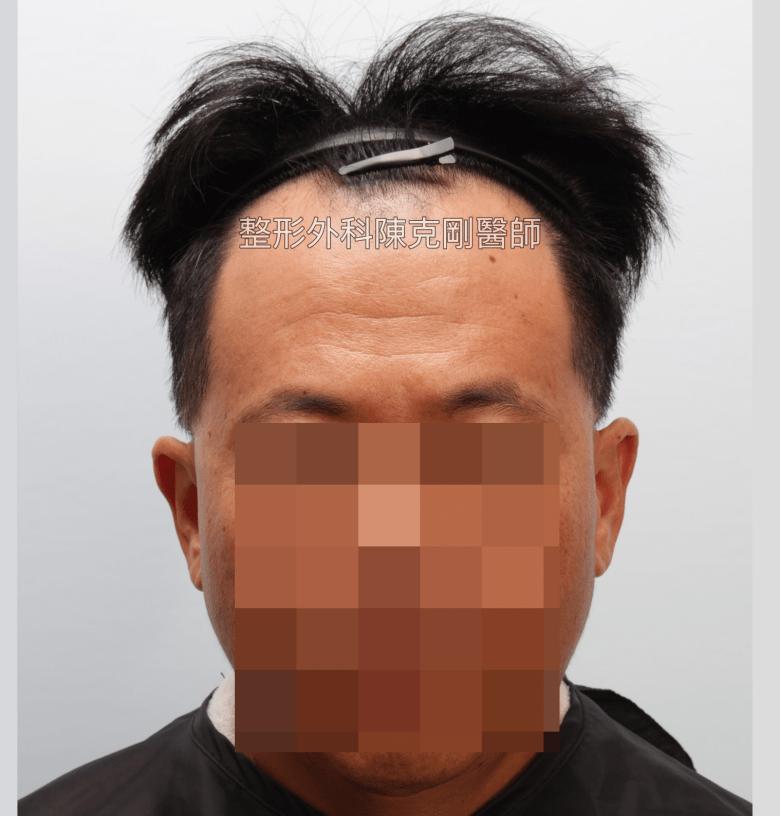 髮線後退植髮手術前正面