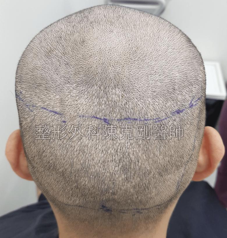 ARTAS植髮失敗二次植髮重修案例後腦術前