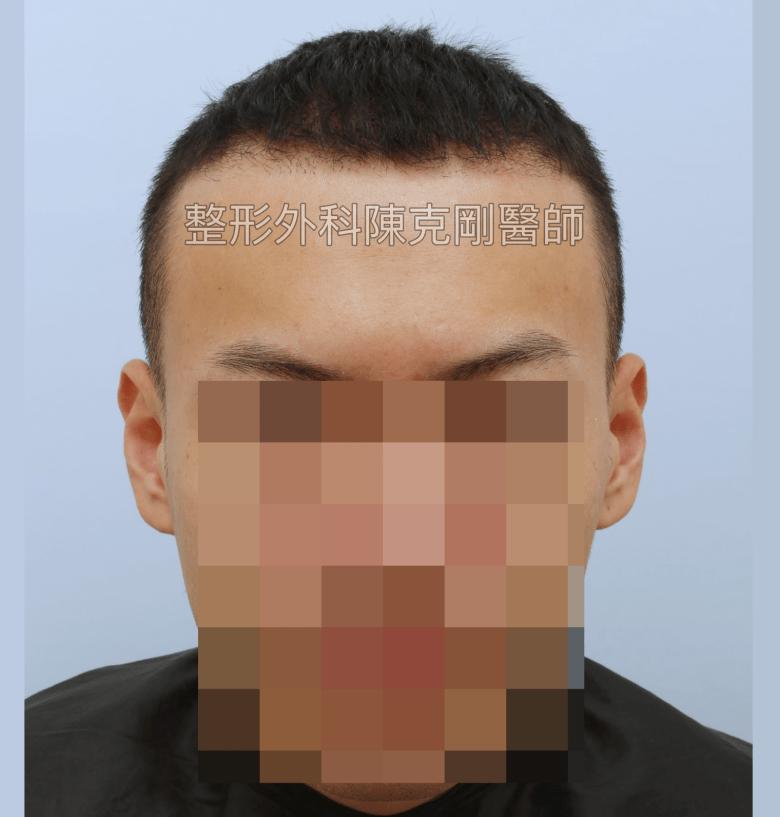 ARTAS植髮機器人失敗二次植髮重修案例正面術前瀏海