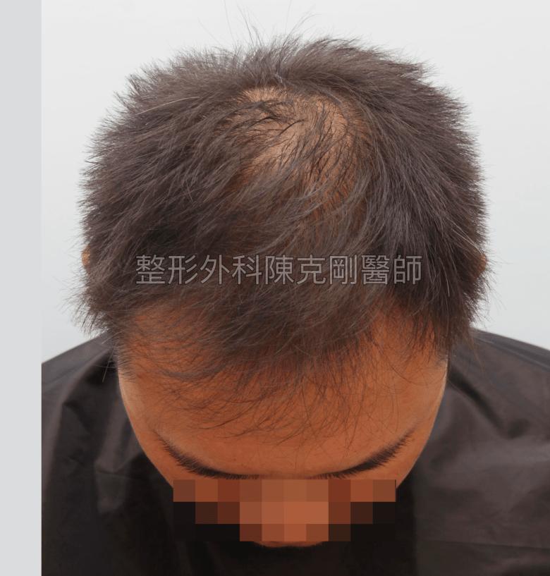最推薦的植髮方式:FUE巨量植髮低頭術前