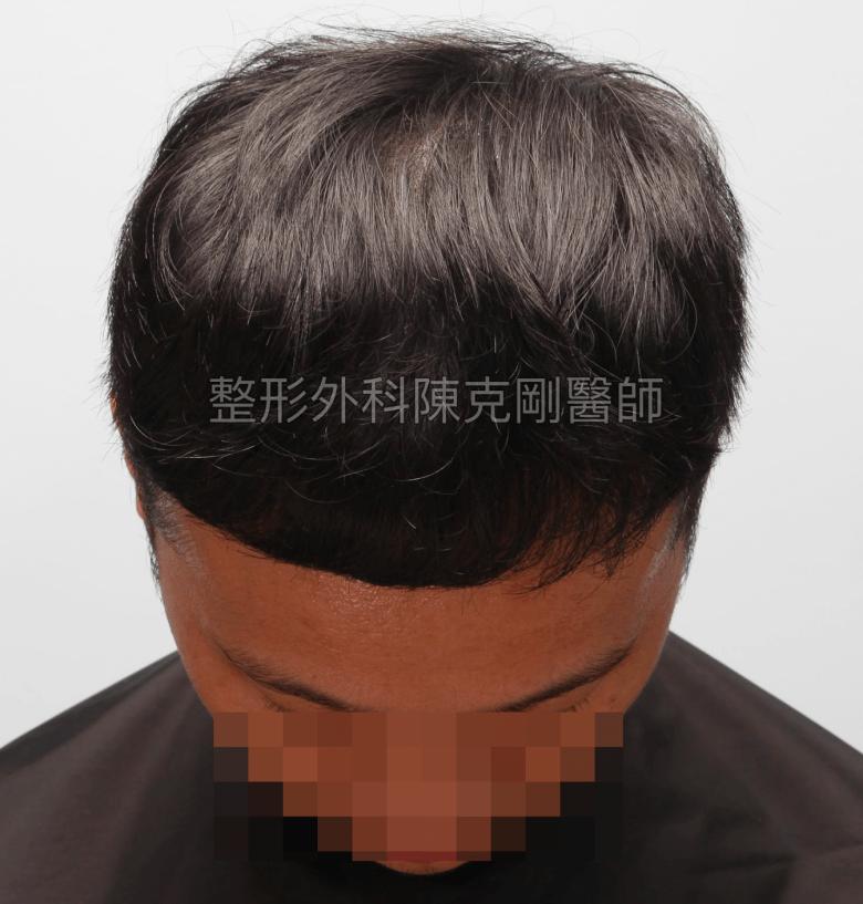 高密度巨量植髮 一次達標頭髮年齡年輕十歲 植髮術後一年三個月低頭