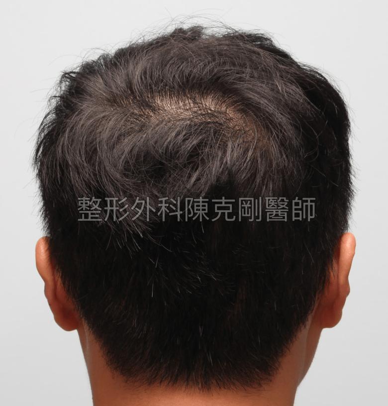 高密度巨量植髮 一次達標頭髮年齡年輕十歲 植髮術後一年三個月後腦