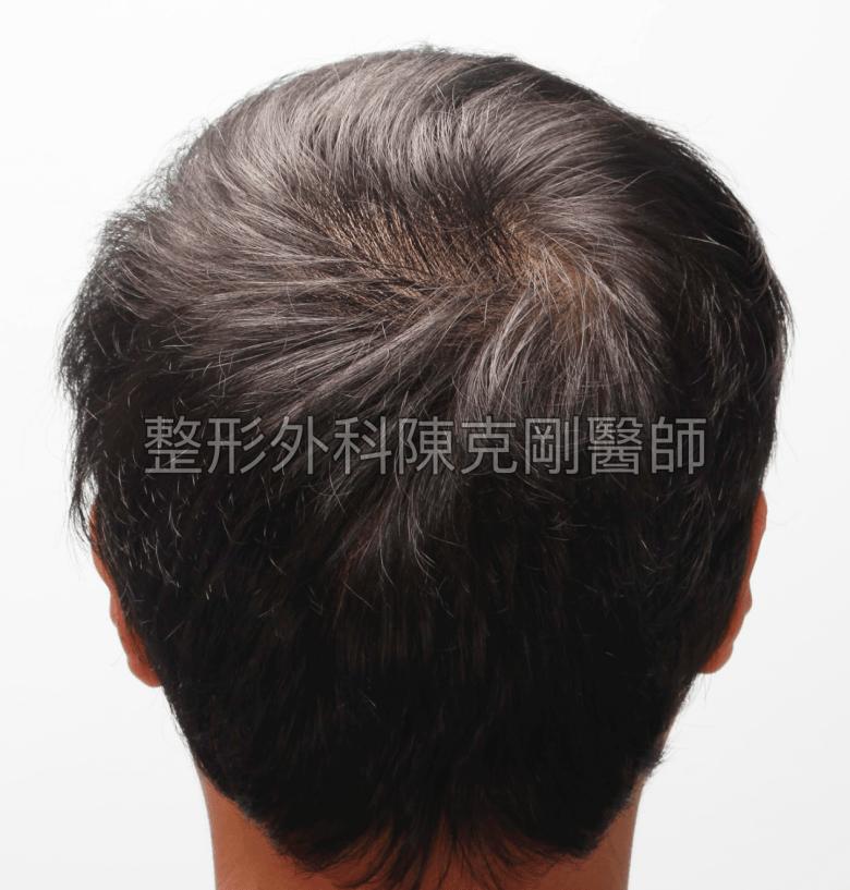高密度巨量植髮 一次達標頭髮年齡年輕十歲 植髮術後六個月後腦