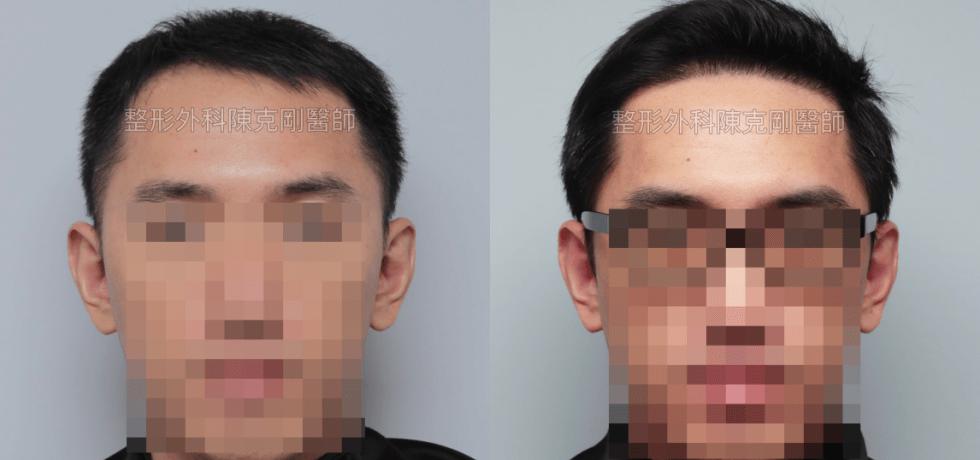 髮線植髮合併生髮髮量大躍進 植髮手術術後半年比較 正面