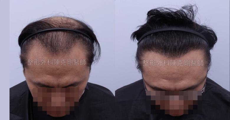 FUE巨量植髮 移植高品質毛囊 植髮手術後一年低頭比較