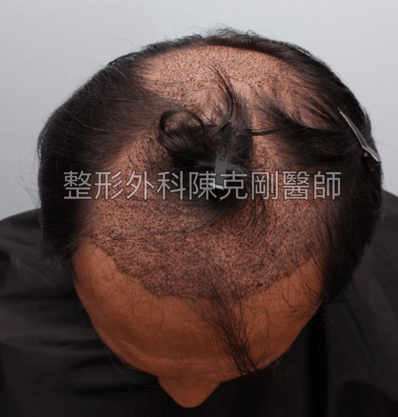 FUT植髮失敗後巨量植髮重修低頭術後一週