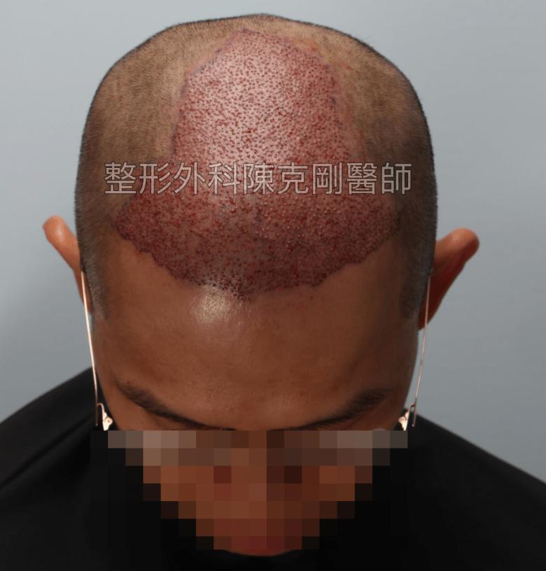FUE植髮專家陳克剛醫師雄性禿植髮案例 植髮手術術後立即 低頭