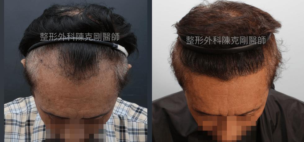 年長者的植髮 植髮手術後一年兩個月低頭髮線比較