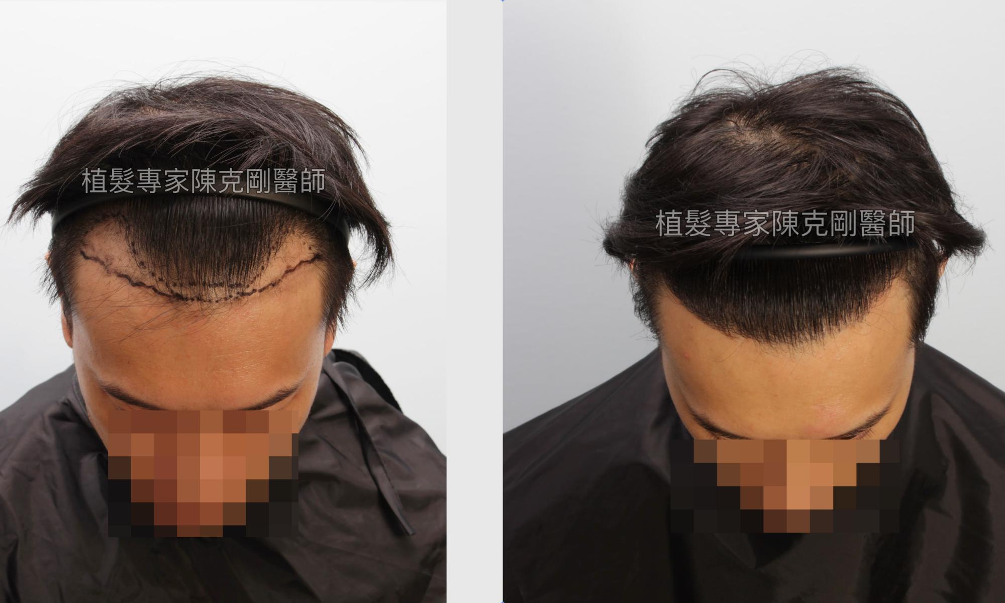 植髮際線恢復髮線 高雄植髮專家陳克剛醫師植髮案例分享 植髮手術後十個月低頭比較