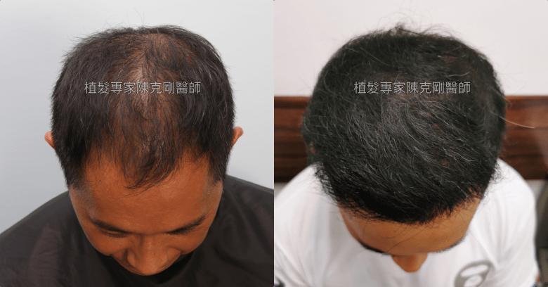 前額植髮 髮線額頭年輕化 台灣植髮專家陳克剛醫師案例分享 植髮手術後九個月低頭比較