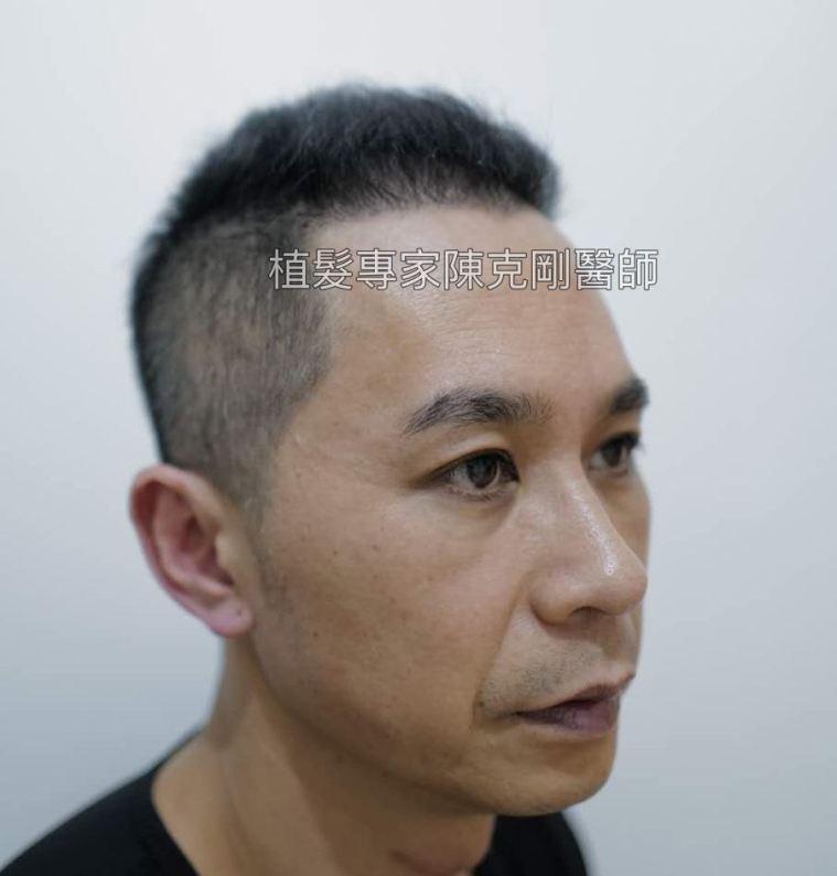 前額植髮 髮線額頭年輕化 台灣植髮專家陳克剛醫師案例分享 植髮手術後六個月右側