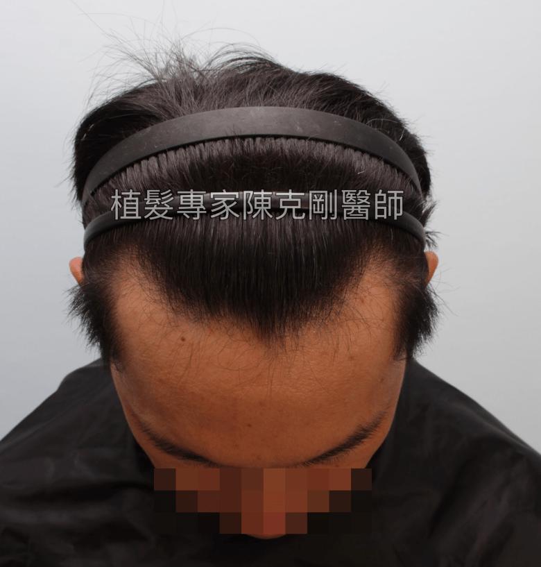天生高額頭植髮 高雄植髮專家陳克剛醫師案例分享 植髮手術前低頭