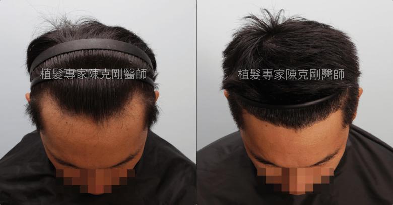 天生高額頭植髮 高雄植髮專家陳克剛醫師案例分享 植髮手術後五個半月低頭比較