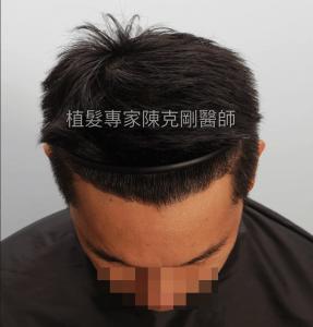 天生高額頭植髮 高雄植髮專家陳克剛醫師案例分享 植髮手術後五個半月低頭