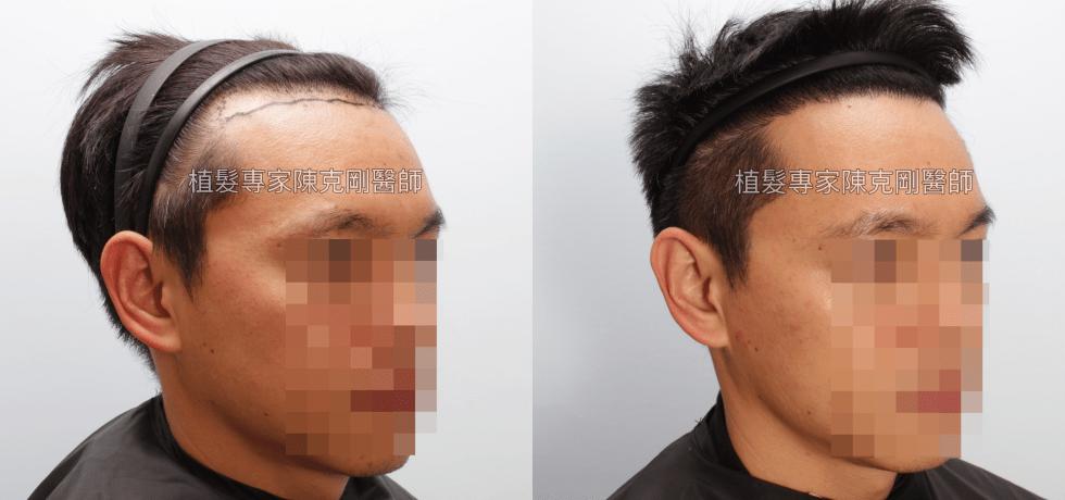 天生高額頭植髮 高雄植髮專家陳克剛醫師案例分享 植髮手術後五個半月右側比較