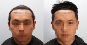 天生高額頭植髮 高雄植髮專家陳克剛醫師案例分享 植髮手術後五個半月正面比較