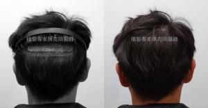 天生高額頭植髮 高雄植髮專家陳克剛醫師案例分享 植髮手術術後分層剃髮看不出來手術痕跡