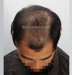 高雄植髮專家陳克剛醫師 FUE巨量植髮案例分享 植髮手術前低頭