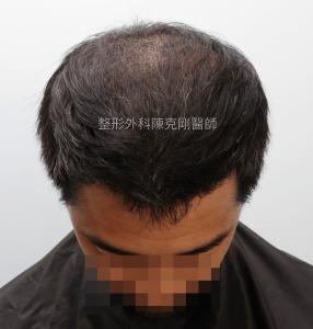 高雄植髮專家陳克剛醫師 FUE巨量植髮案例分享 植髮手術後六個月低頭