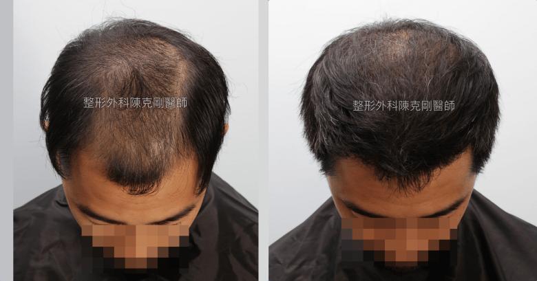 高雄植髮專家陳克剛醫師 FUE巨量植髮案例分享 植髮手術後半年低頭比較