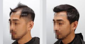 高雄植髮專家陳克剛醫師 FUE巨量植髮案例分享 植髮手術後半年左側比較