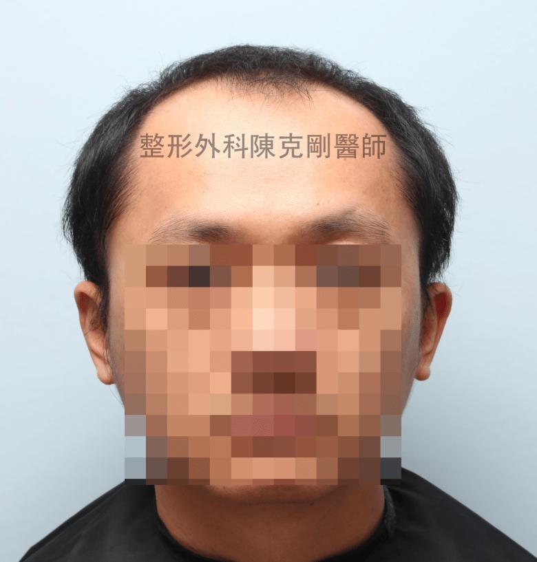 陳克剛醫師桃園巨量植髮案例分享植髮手術前正面
