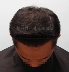 陳克剛醫師桃園巨量植髮案例分享植髮手術後六個月低頭髮線