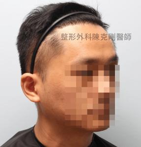 陳克剛醫師桃園巨量植髮案例分享植髮手術後六個月右側髮線