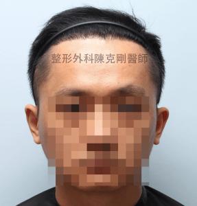 陳克剛醫師桃園巨量植髮案例分享植髮手術後六個月正面髮線